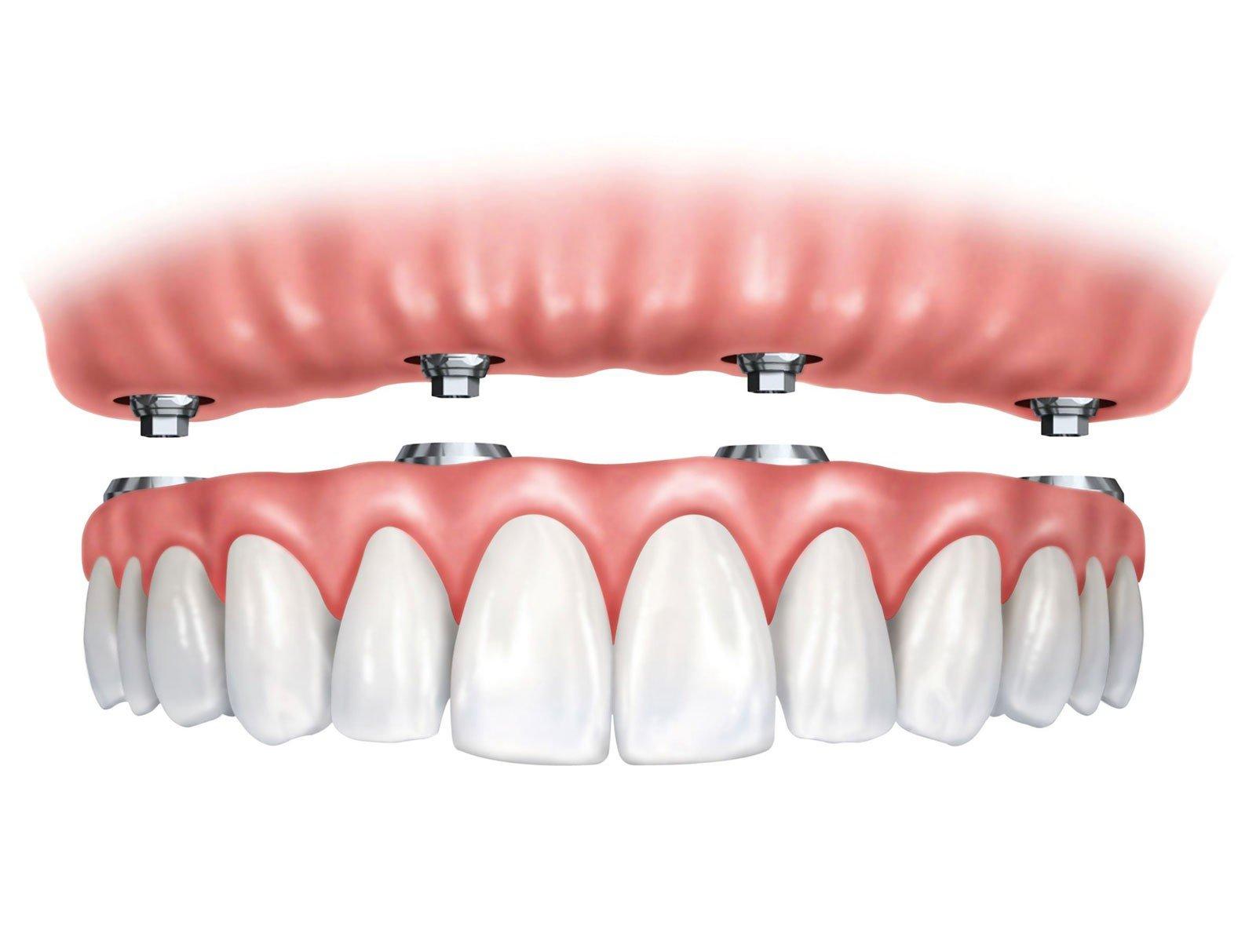 Зубы за один день - All on 4