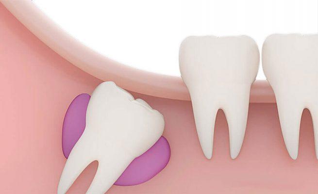 slognoe-udalenie-zuba-mudrosti-1-1